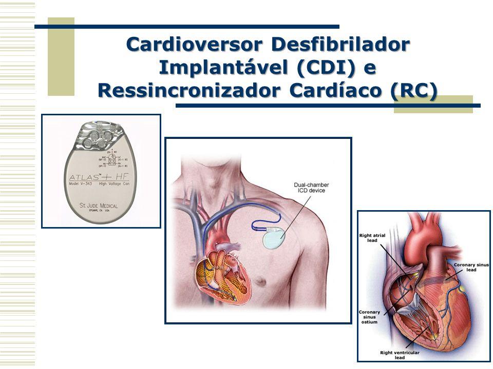 Cardioversor Desfibrilador Implantável (CDI) e Ressincronizador Cardíaco (RC)