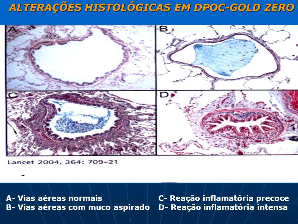 ALTERAÇÕES HISTOLÓGICAS EM DPOC-GOLD ZERO