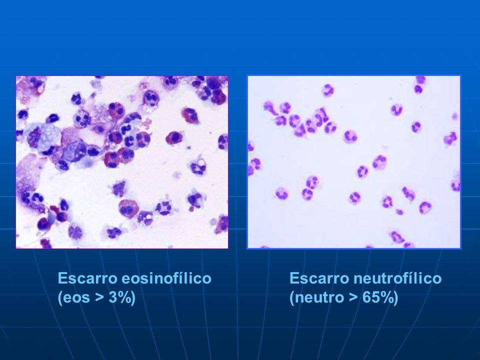 Escarro eosinofílico (eos > 3%) Escarro neutrofílico (neutro > 65%)