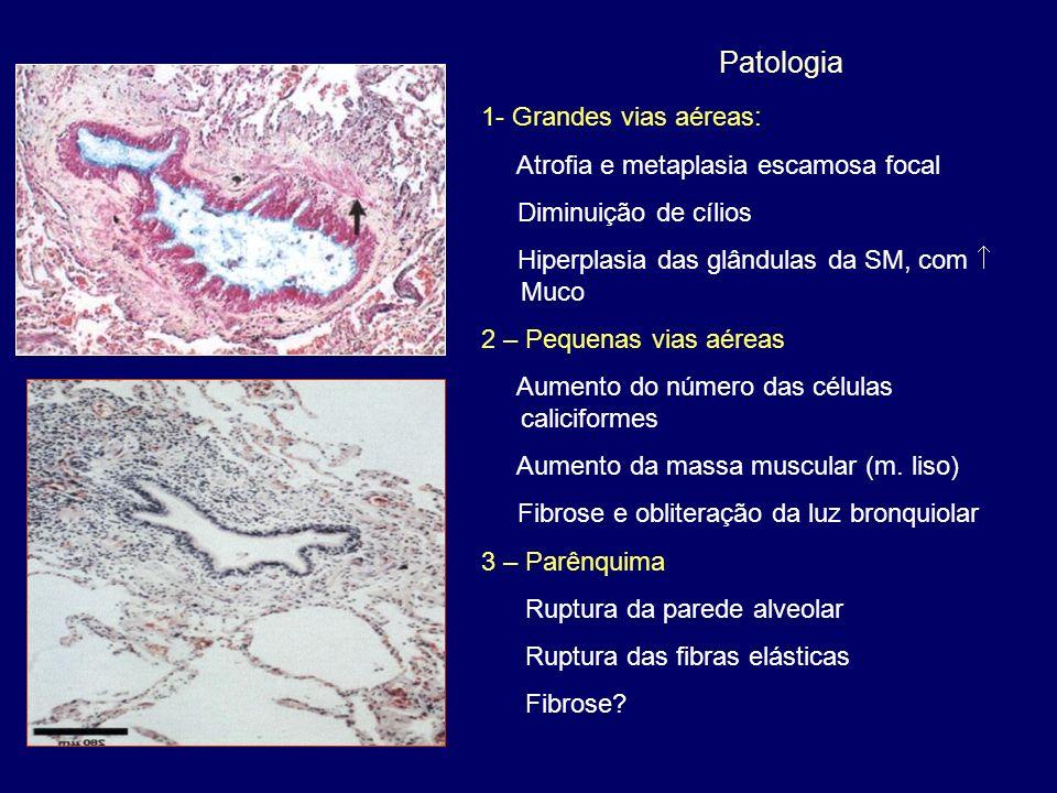 Patologia 1- Grandes vias aéreas: Atrofia e metaplasia escamosa focal