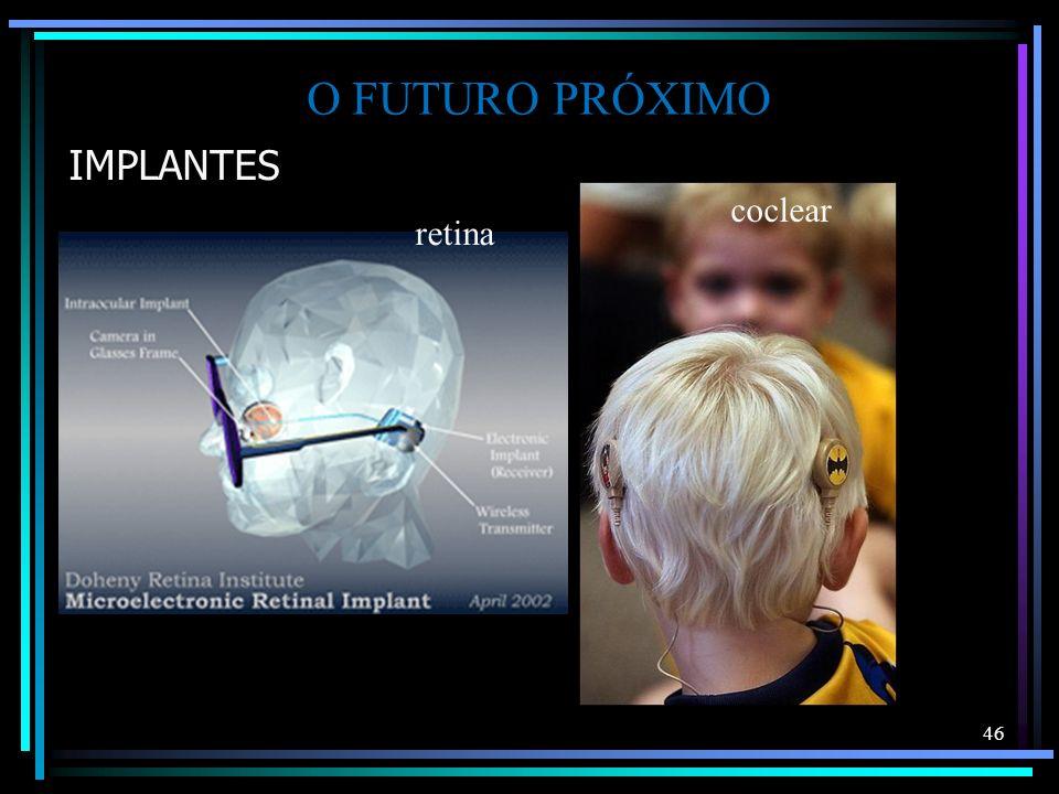 O FUTURO PRÓXIMO IMPLANTES coclear retina