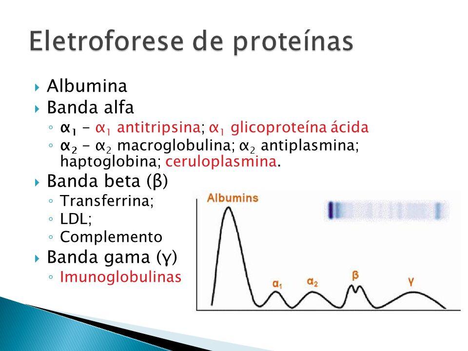 Eletroforese de proteínas