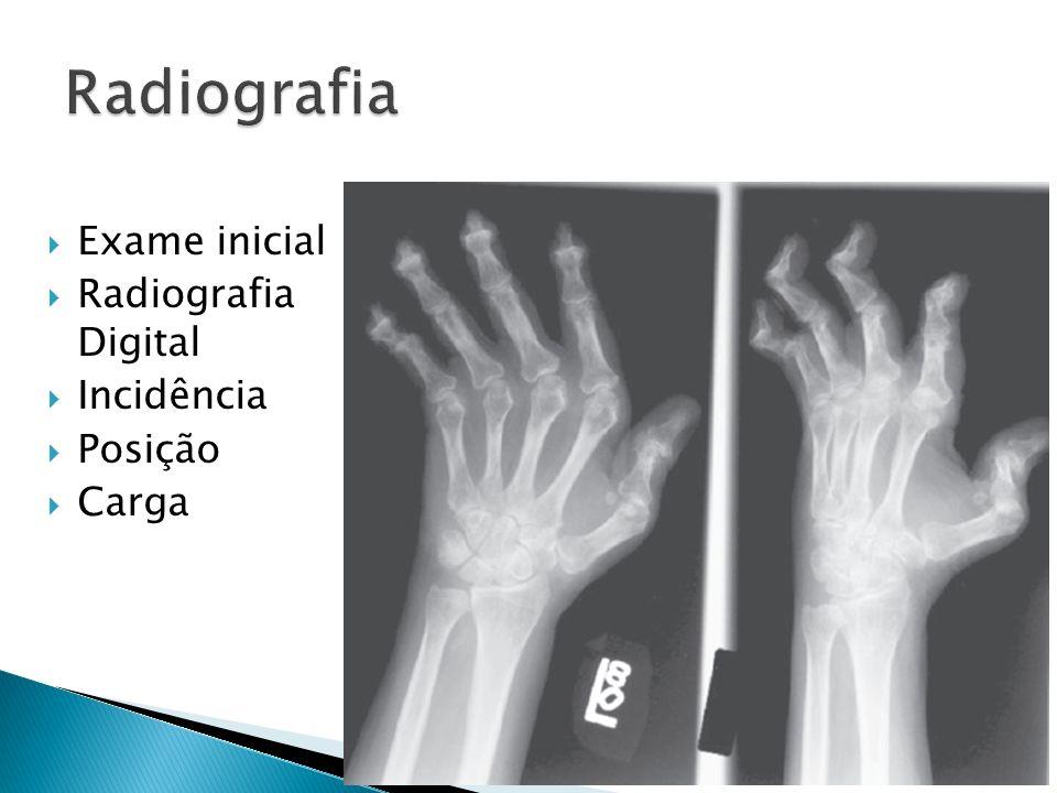 Radiografia Exame inicial Radiografia Digital Incidência Posição Carga