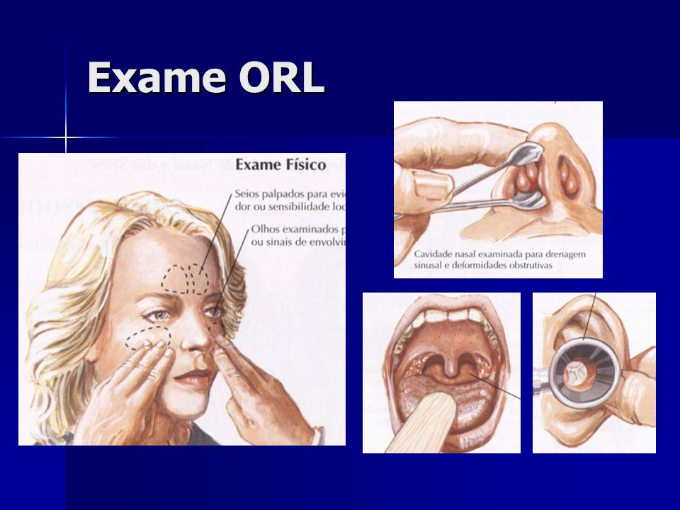 Exame ORL O exame ORL básico faz palpação dos seios paranasais, rinoscopia anterior, oroscopia e otoscopia.