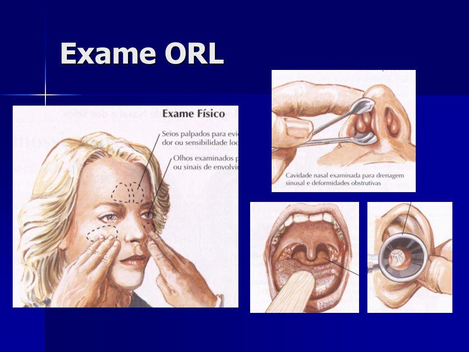 Exame ORLO exame ORL básico faz palpação dos seios paranasais, rinoscopia anterior, oroscopia e otoscopia.