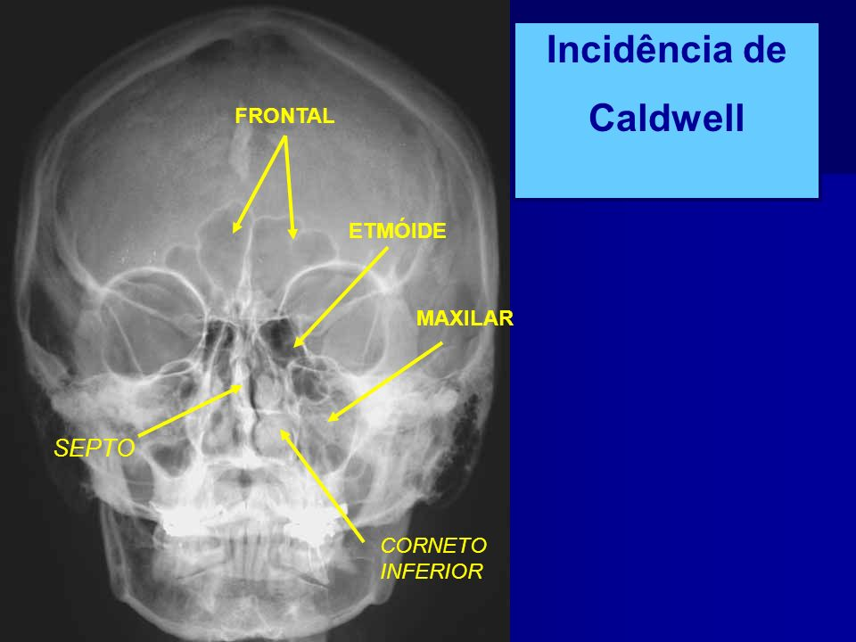 Incidência de Caldwell