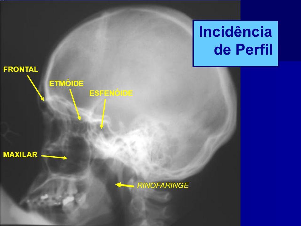 Incidência de Perfil FRONTAL ETMÓIDE ESFENÓIDE MAXILAR RINOFARINGE