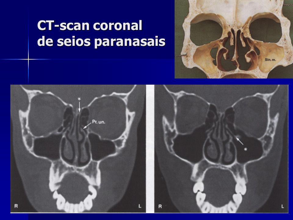 CT-scan coronal de seios paranasais
