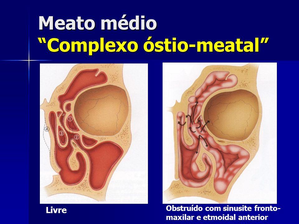 Meato médio Complexo óstio-meatal