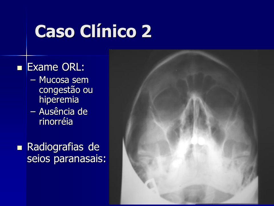 Caso Clínico 2 Exame ORL: Radiografias de seios paranasais: