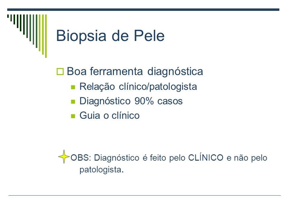 Biopsia de Pele Boa ferramenta diagnóstica Relação clínico/patologista
