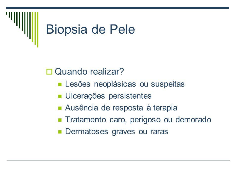 Biopsia de Pele Quando realizar Lesões neoplásicas ou suspeitas