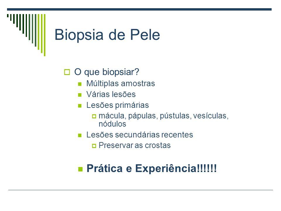 Biopsia de Pele Prática e Experiência!!!!!! O que biopsiar