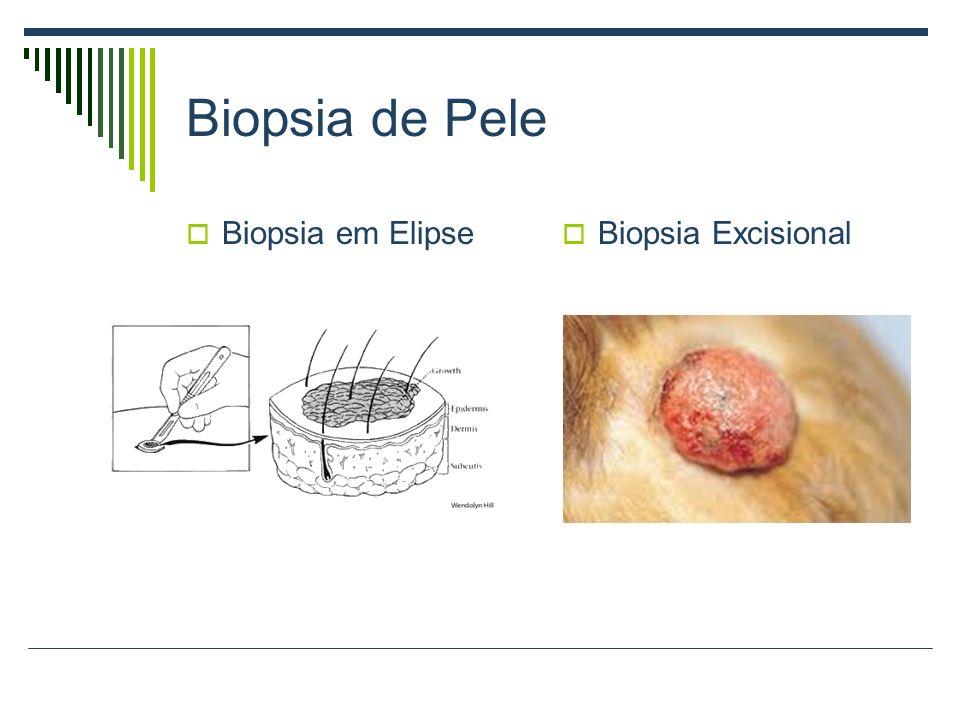 Biopsia de Pele Biopsia em Elipse Biopsia Excisional