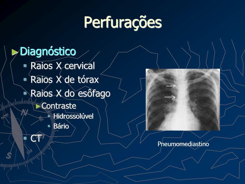 Perfurações Diagnóstico Raios X cervical Raios X de tórax