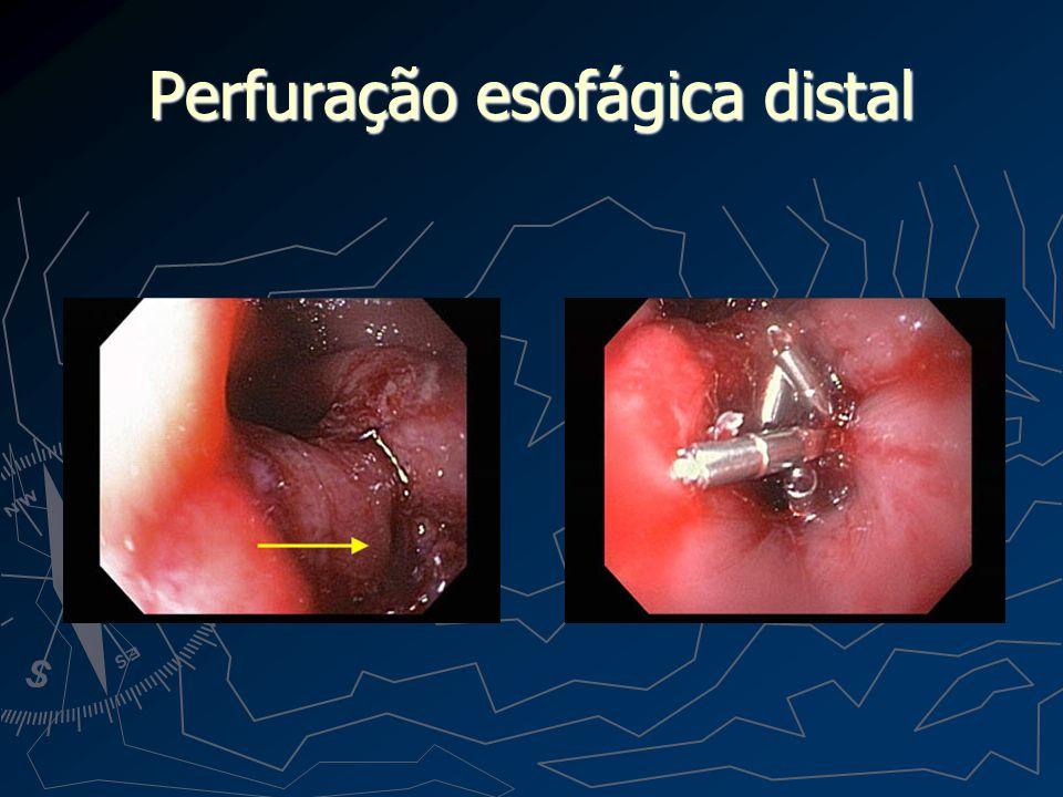 Perfuração esofágica distal