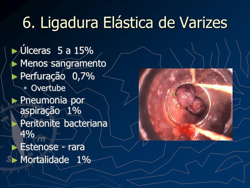 6. Ligadura Elástica de Varizes
