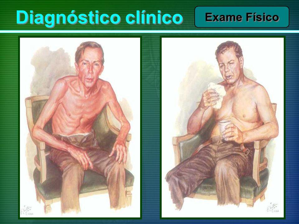 Diagnóstico clínico Exame Físico
