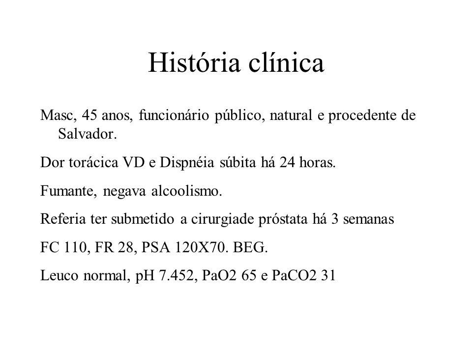 História clínica Masc, 45 anos, funcionário público, natural e procedente de Salvador. Dor torácica VD e Dispnéia súbita há 24 horas.