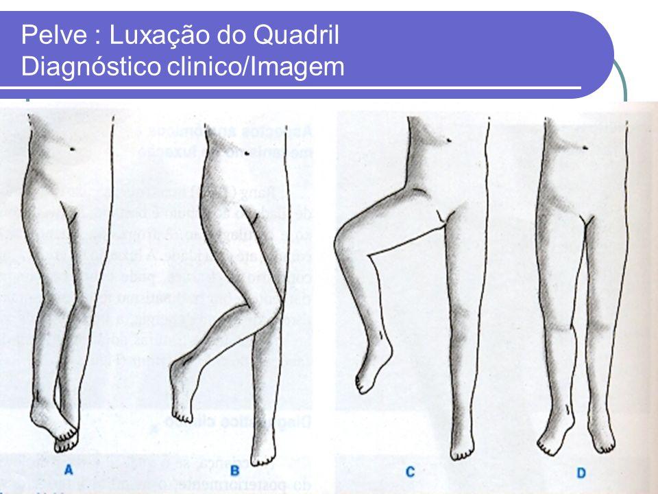 Pelve : Luxação do Quadril Diagnóstico clinico/Imagem