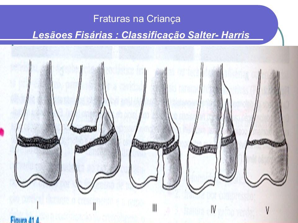 Lesãoes Fisárias : Classificação Salter- Harris