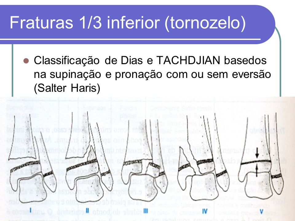 Fraturas 1/3 inferior (tornozelo)