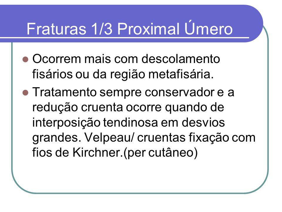 Fraturas 1/3 Proximal Úmero