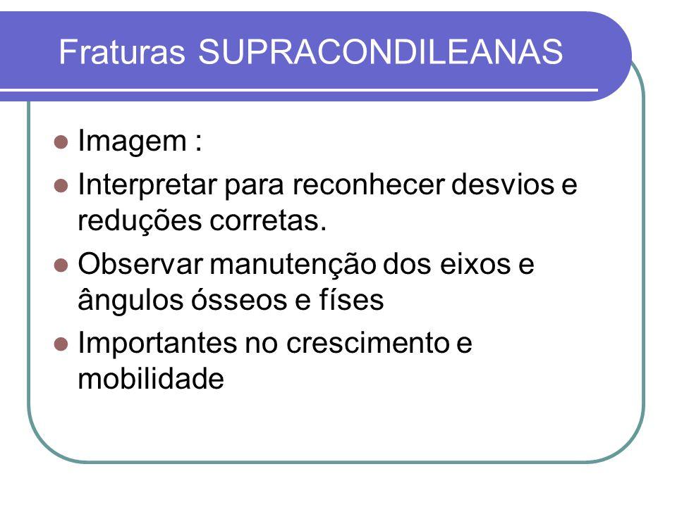 Fraturas SUPRACONDILEANAS