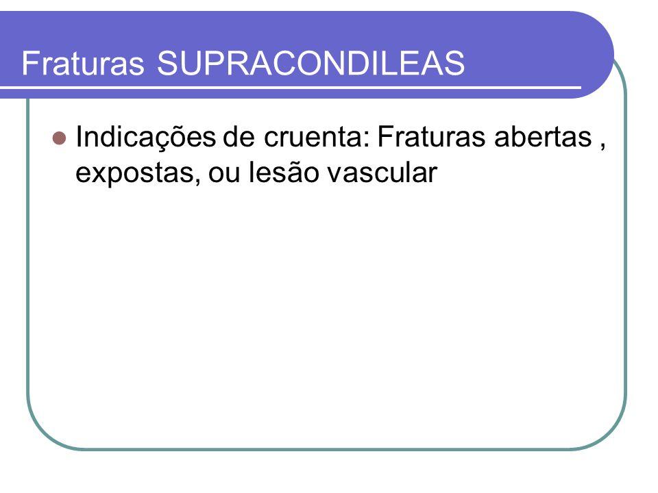 Fraturas SUPRACONDILEAS