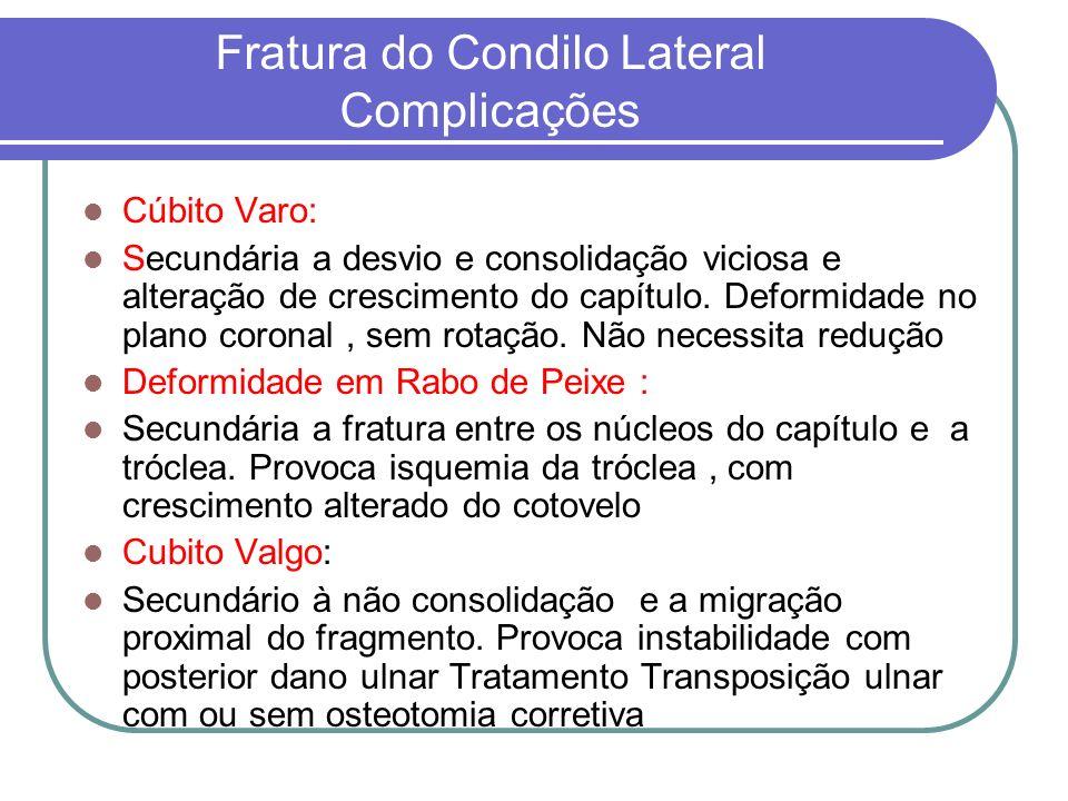 Fratura do Condilo Lateral Complicações