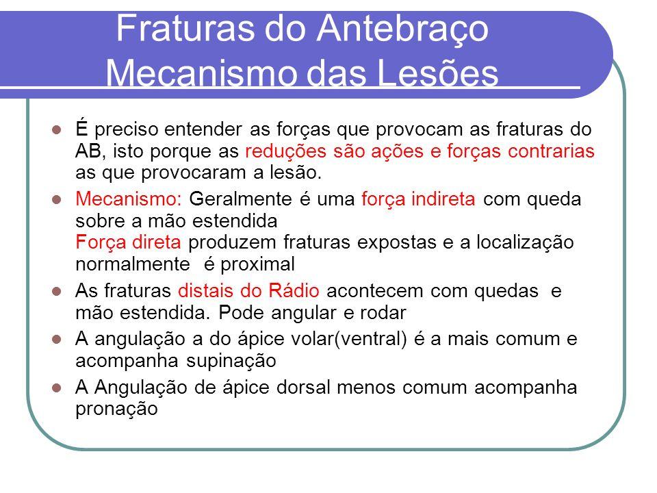 Fraturas do Antebraço Mecanismo das Lesões