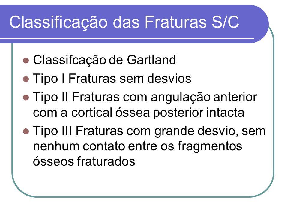 Classificação das Fraturas S/C