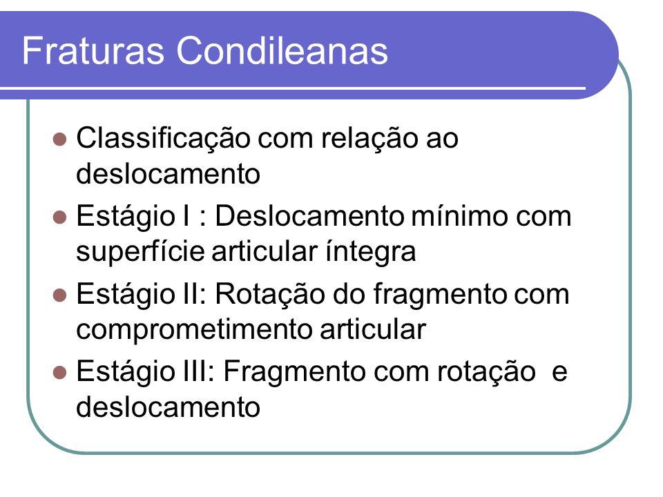Fraturas Condileanas Classificação com relação ao deslocamento
