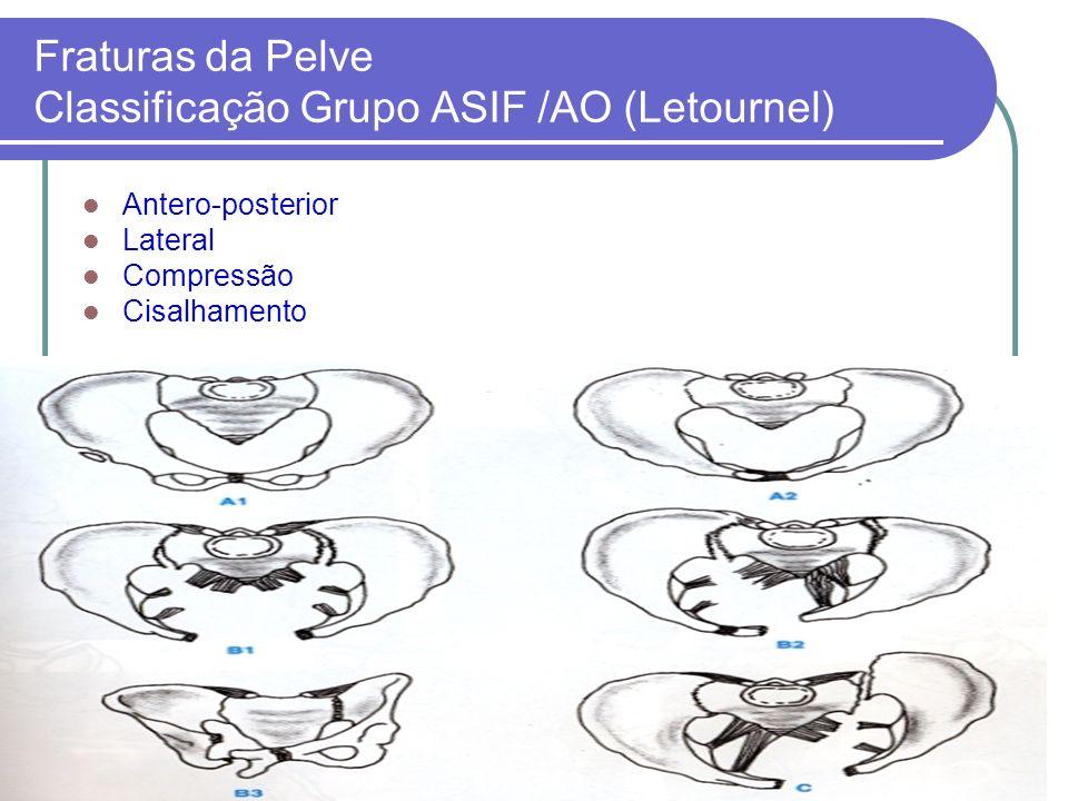 Fraturas da Pelve Classificação Grupo ASIF /AO (Letournel)