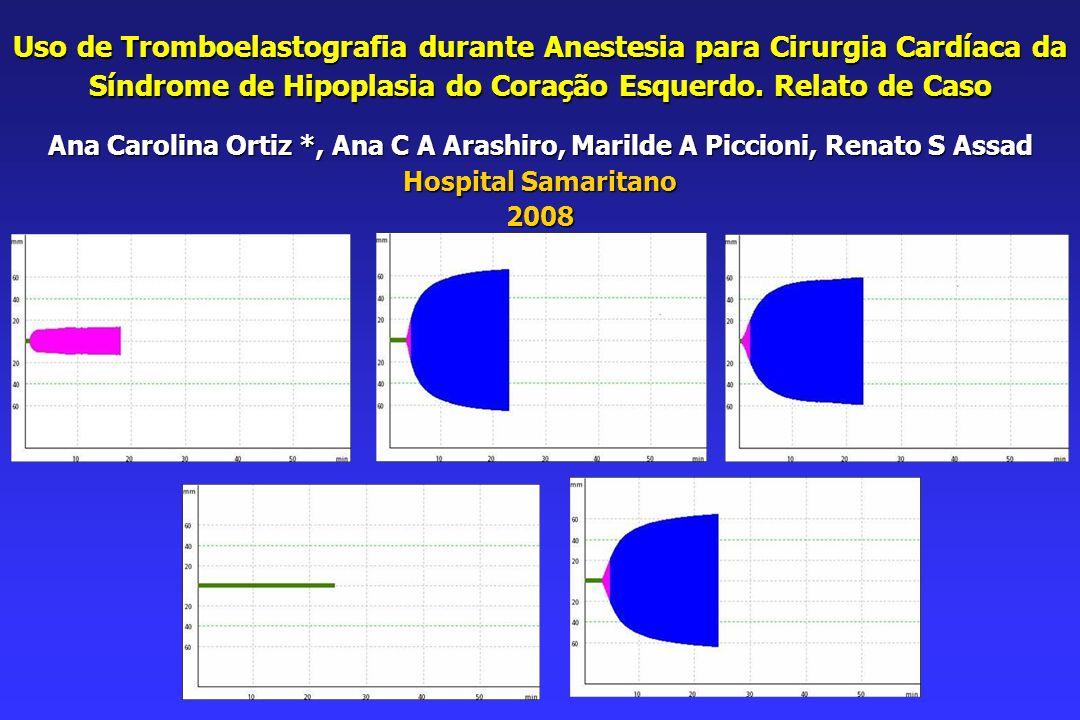 Uso de Tromboelastografia durante Anestesia para Cirurgia Cardíaca da Síndrome de Hipoplasia do Coração Esquerdo. Relato de Caso