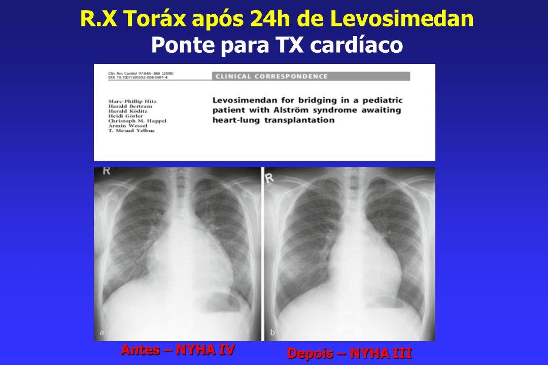 R.X Toráx após 24h de Levosimedan Ponte para TX cardíaco