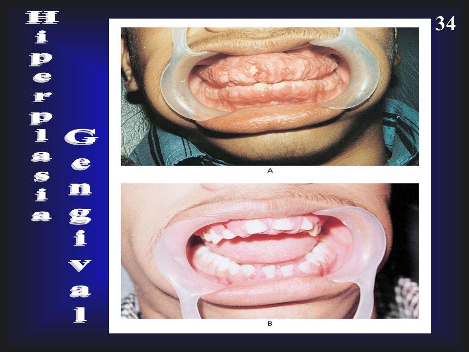 Hiperplasia Gengival
