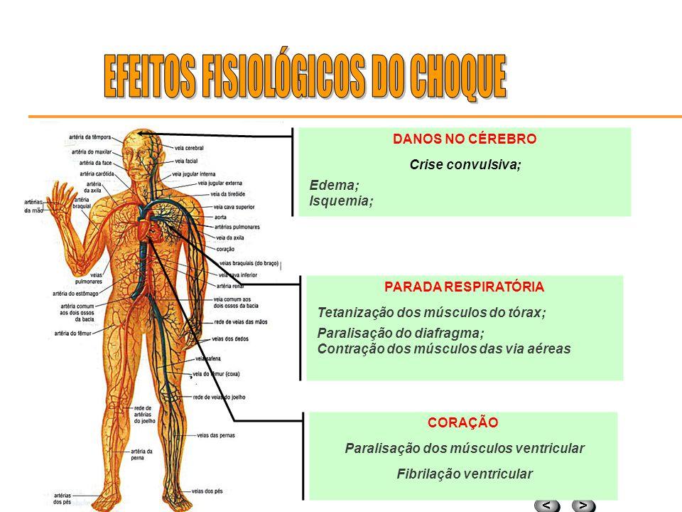 Paralisação dos músculos ventricular Fibrilação ventricular