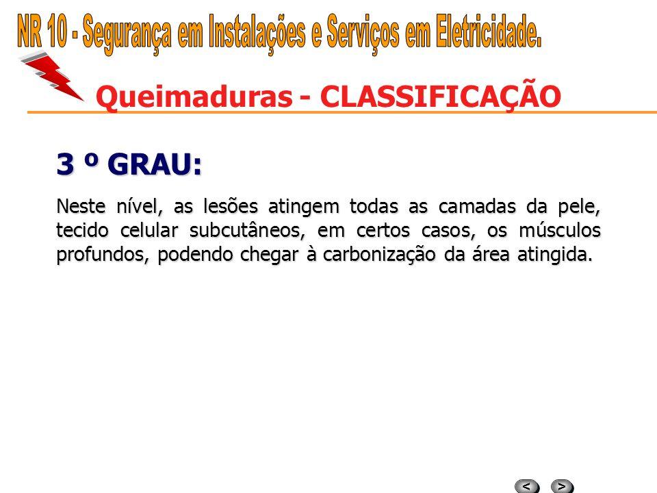 Queimaduras - CLASSIFICAÇÃO