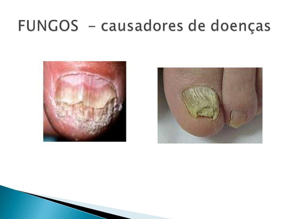 FUNGOS - causadores de doenças