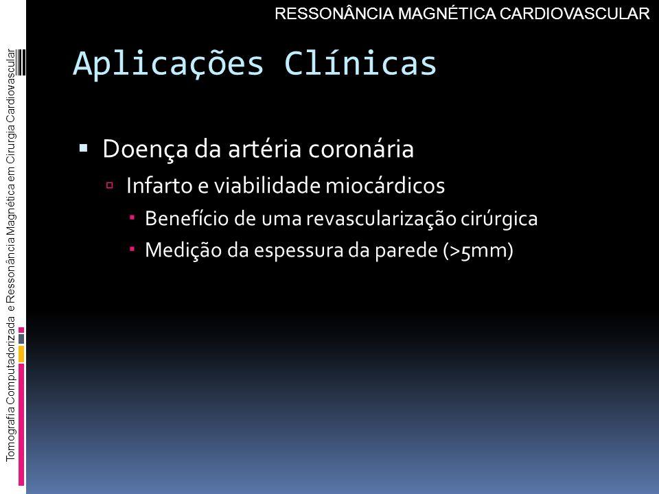 Aplicações Clínicas Doença da artéria coronária