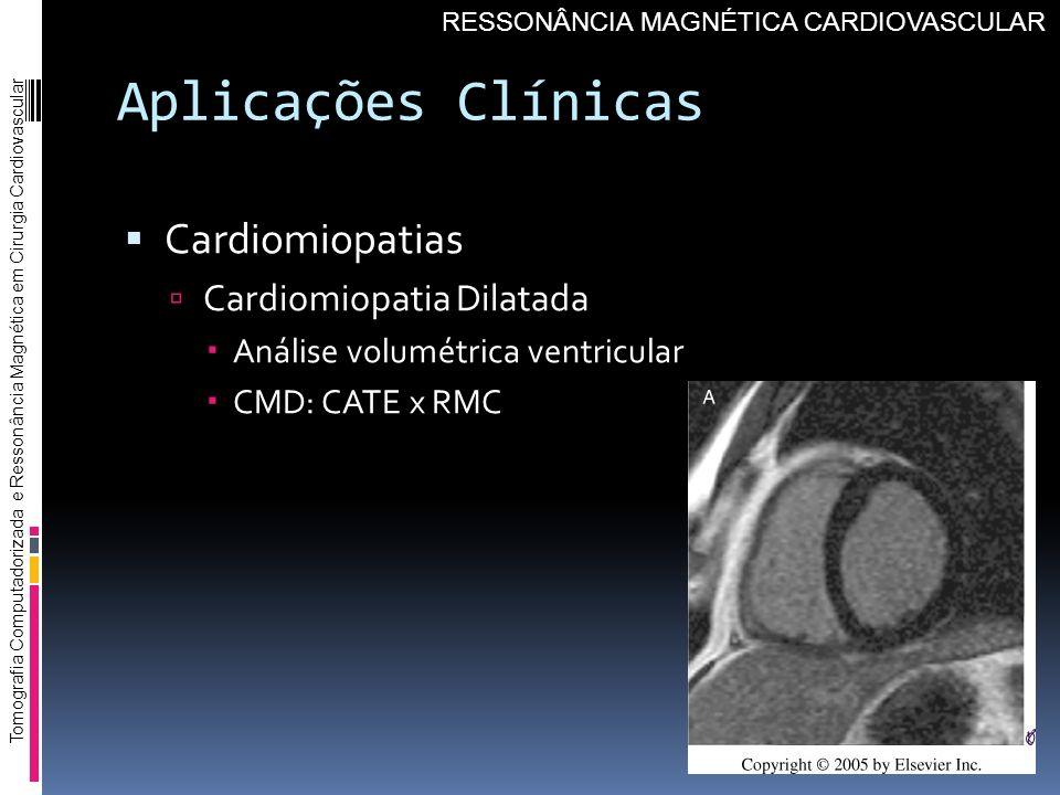 Aplicações Clínicas Cardiomiopatias Cardiomiopatia Dilatada