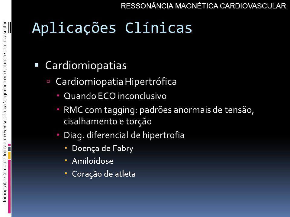 Aplicações Clínicas Cardiomiopatias Cardiomiopatia Hipertrófica