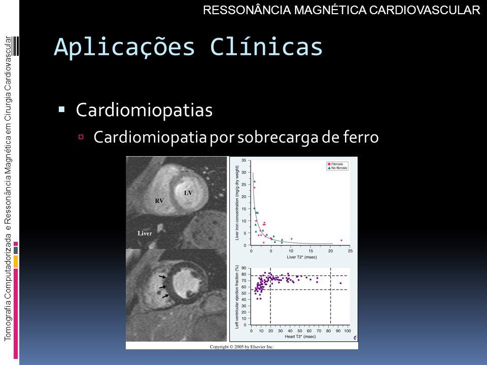 Aplicações Clínicas Cardiomiopatias
