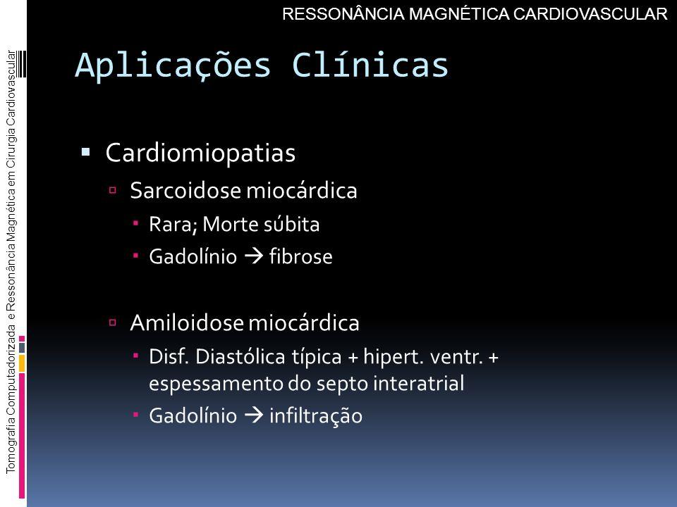 Aplicações Clínicas Cardiomiopatias Sarcoidose miocárdica