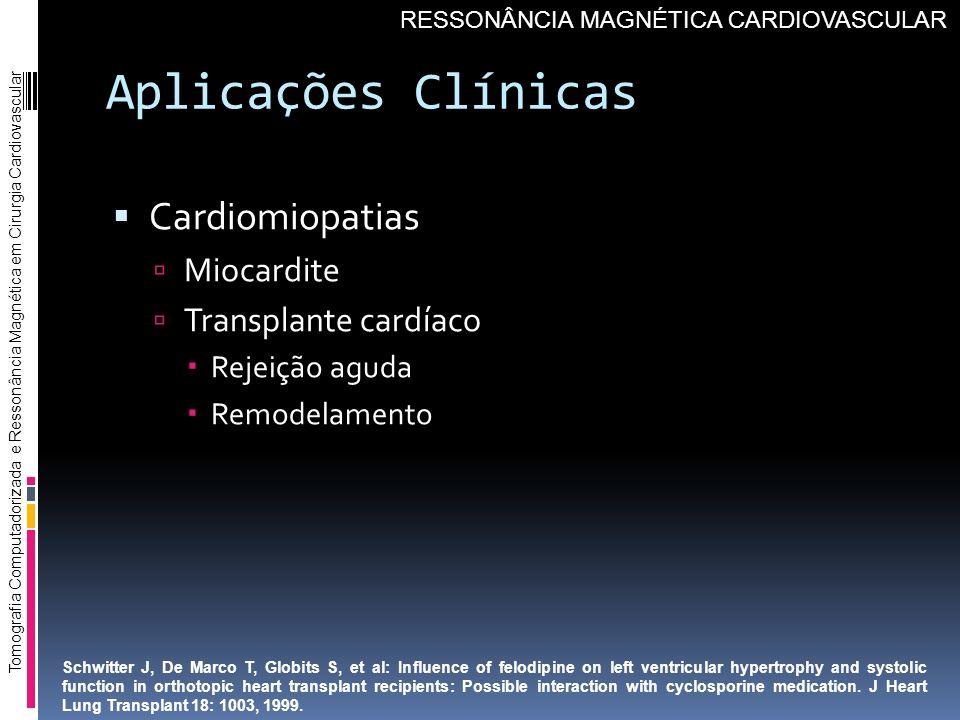 Aplicações Clínicas Cardiomiopatias Miocardite Transplante cardíaco