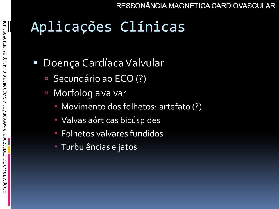 Aplicações Clínicas Doença Cardíaca Valvular Secundário ao ECO ( )