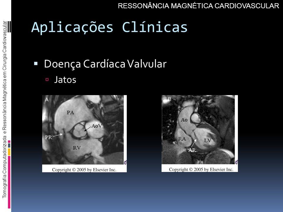 Aplicações Clínicas Doença Cardíaca Valvular Jatos