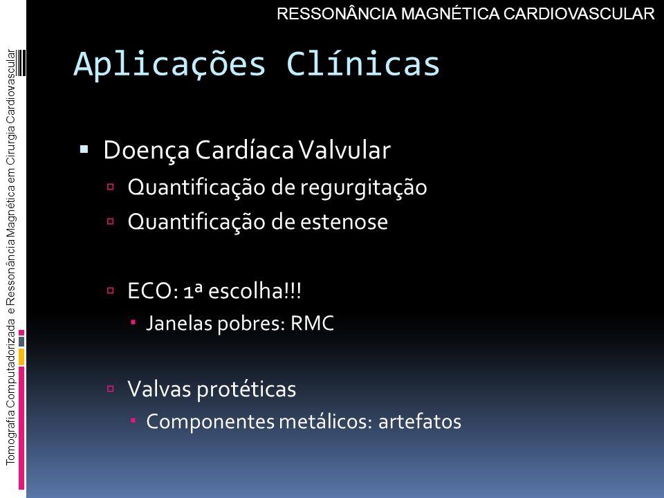 Aplicações Clínicas Doença Cardíaca Valvular