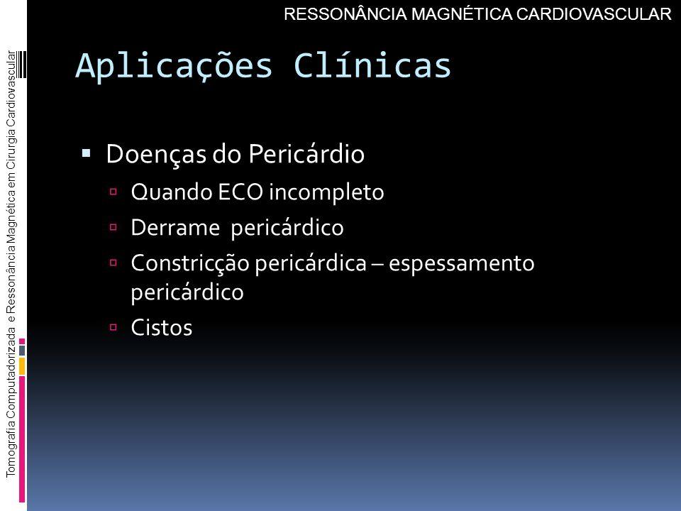 Aplicações Clínicas Doenças do Pericárdio Quando ECO incompleto